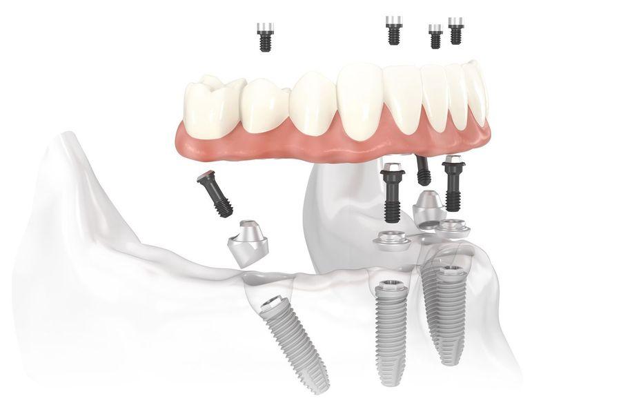 ทำรากเทียม All On 4 โดยไม่ต้องง้อฟันปลอม